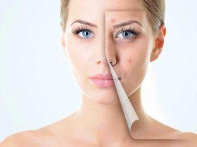 لکه های پوستی چیست و چگونه درمان می شوند ؟