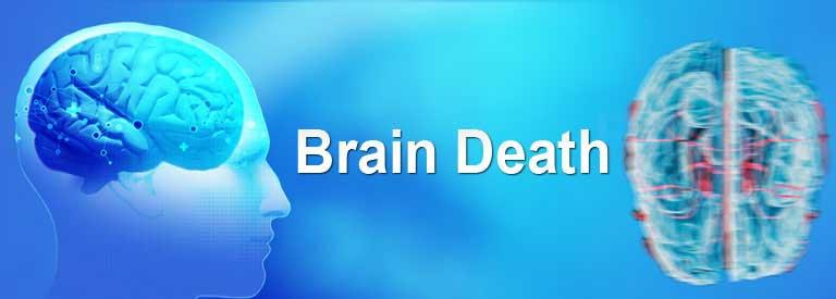 دلایل مرگ مغزی چیست؟