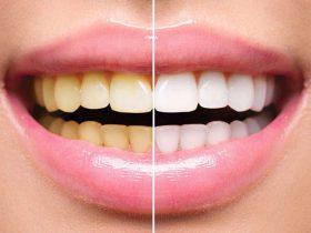 چند ترفند ساده برای سفیدی دندان