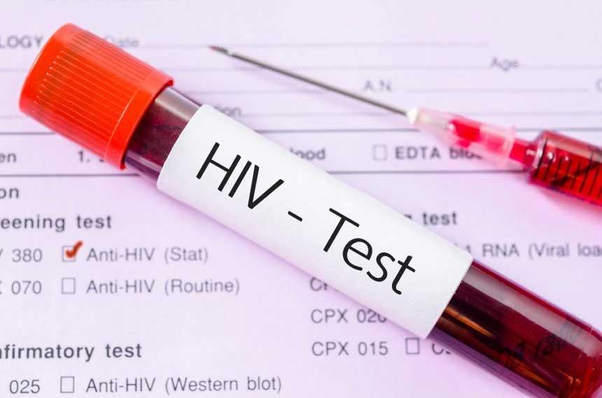 آخرین آمار ابتلا به ایدز در دنیا