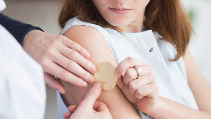 چسب ضد بارداری